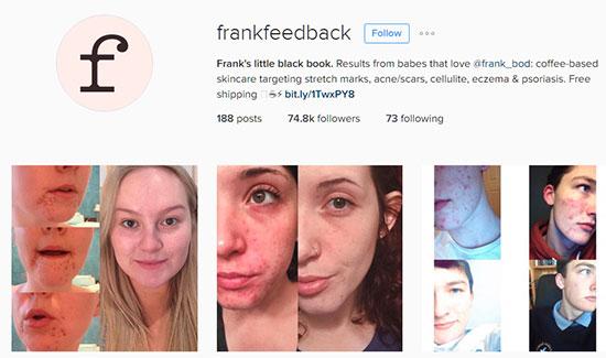 Frank Feedback